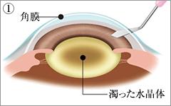 角膜(黒目)と結膜(白目)の境に小さな傷口を作ります。