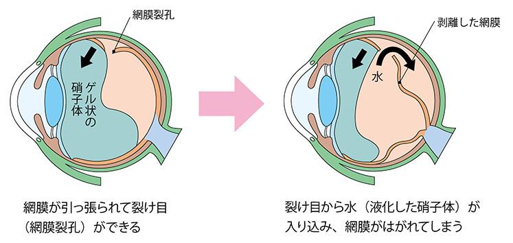 網膜裂孔・網膜剥離とは